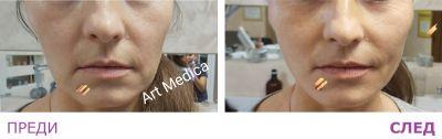 Мезоконци 2 - Дермато-козметичен център Арт-Медика