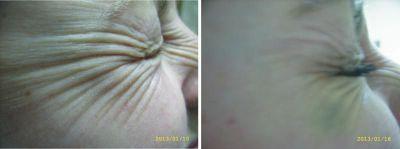 Процедури преди и след ботокс - Дермато-козметичен център Арт-Медика