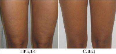 Квитация преди и след - Дермато-козметичен център Арт-Медика