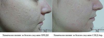 Химически пилинг преди и след - Дермато-козметичен център Арт-Медика
