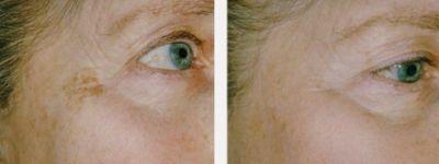 Химерпигментация 1 - Дермато-козметичен център Арт-Медика