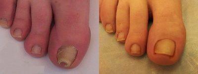 Третиране гъбички под ноктите - Дермато-козметичен център Арт-Медика