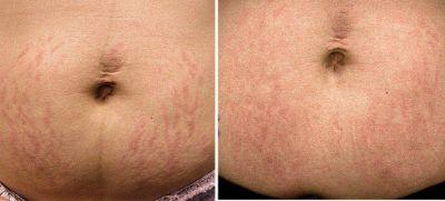 СО2 лазер преди и след - Дермато-козметичен център Арт-Медика