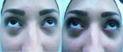 Грим и миглопластика преди и след - Дермато-козметичен център Арт-Медика